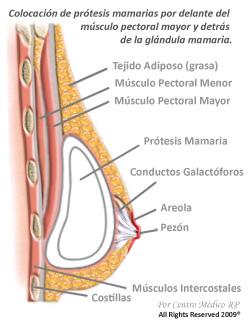 La rehabilitación después de pecho implantov