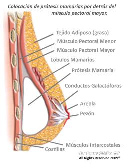 Los problemas con el pecho después de la operación