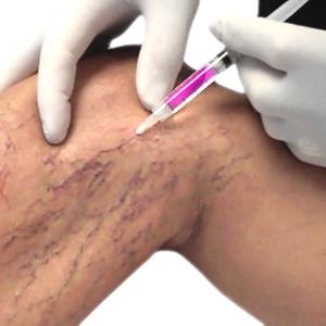 La profiláctica varikoza de las venas en los pies público